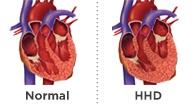 Гипертоническая болезнь сердца